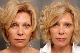 Photo 1 before and after application of Goji Cream