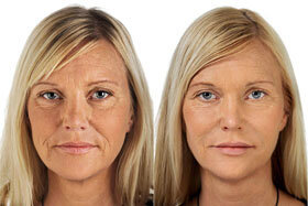 Photo 2 before and after application of Goji Cream