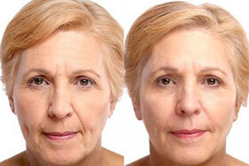 Photo 3-before and after the application of Goji Cream