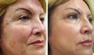 Partial skin rejuvenation before and after taking pictures