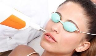 How does laser facial rejuvenation work